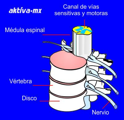 Lesión medular médula espinal