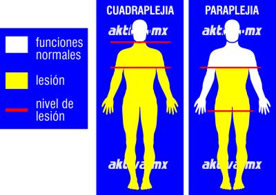 Lesión medular paraplejia cuadraplejia