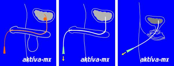 Aplicación de sonda permanente, cateterismo masculino y femenino